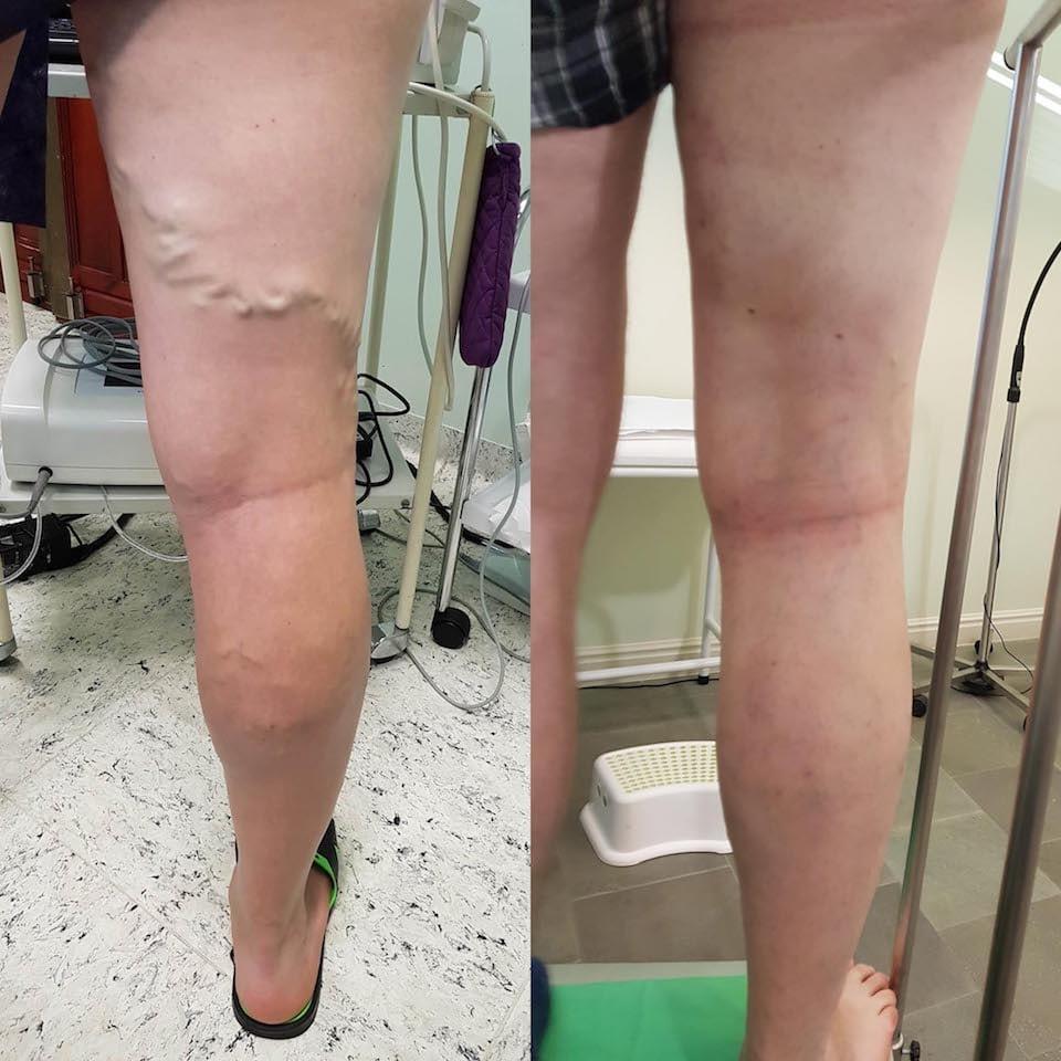 műtét a visszér előtt és után