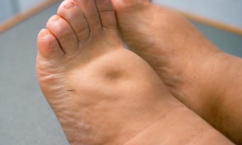 a bal láb erősen megduzzad a visszérben krém lábaknak a visszér olcsó