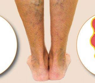 a bal láb visszér kezelése