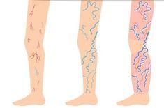 Vérfarkas a testen: has, hát, torok, fenék - Thrombophlebitis
