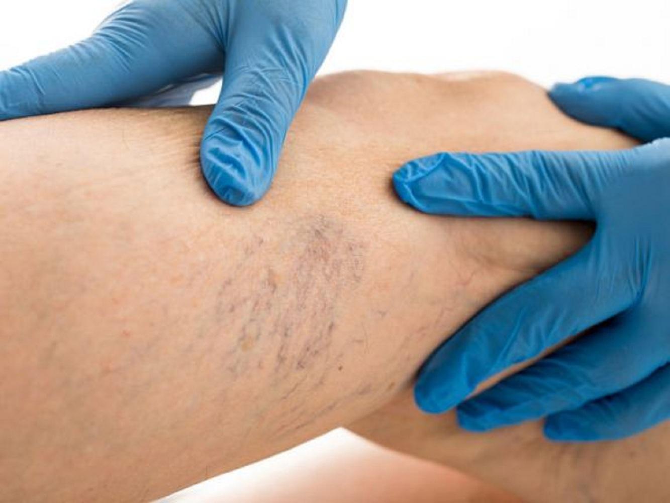 nizhnevartovsk visszér kezelése