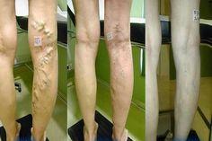 Visszér a láb jelein, Hogyan zajlik a visszérgyulladás kezelés?