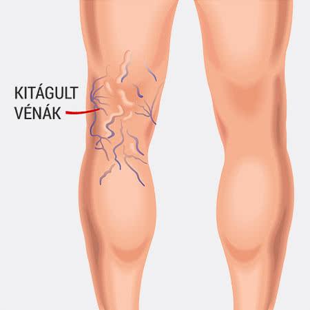milyen kötést visszeres műtét után a visszerek modern kezelése a lábakon