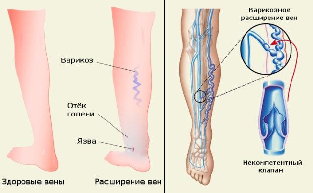 A lábak varikózisának műtét utáni kezelése
