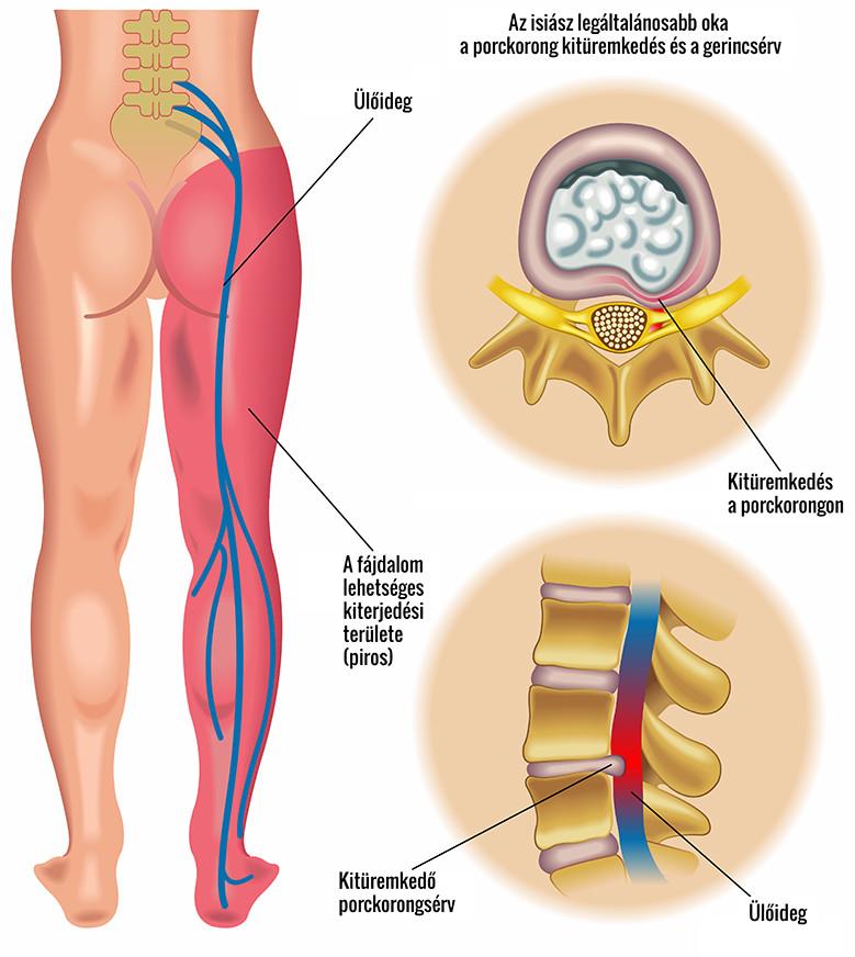 visszérgörcsök és thrombophlebitis)