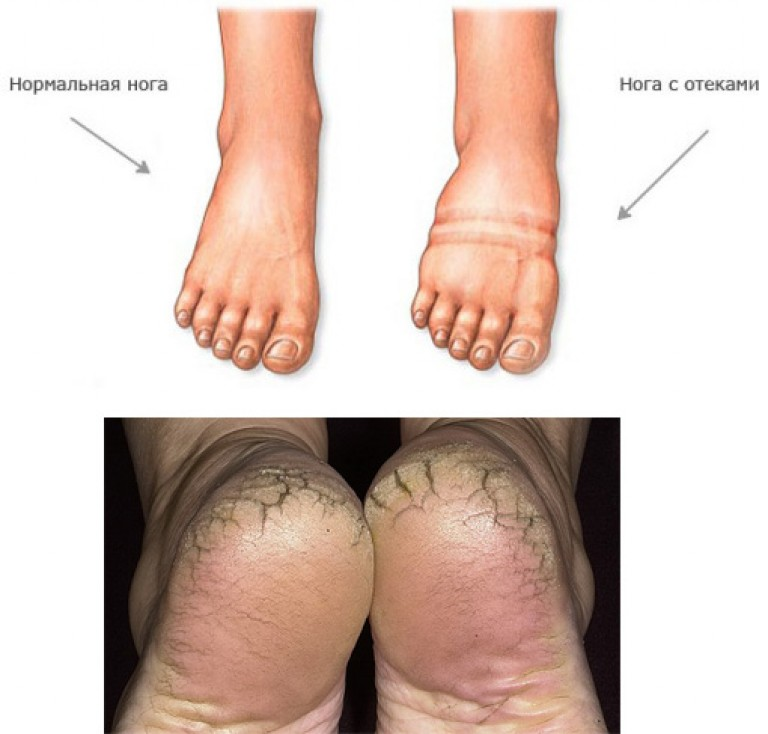 a varikózisos lábak ödémájából származó gyógynövények