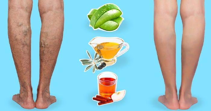 az alsó végtagok visszérének hagyományos kezelési módja kezelés a lábak visszér eltávolítása után