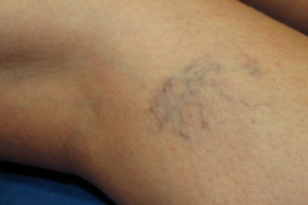 kék foltok a lábon a visszérről visszér kezelése penza áron