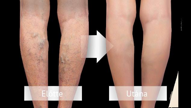 visszér, hogyan kell kezelni a só segít a visszeres lábakon
