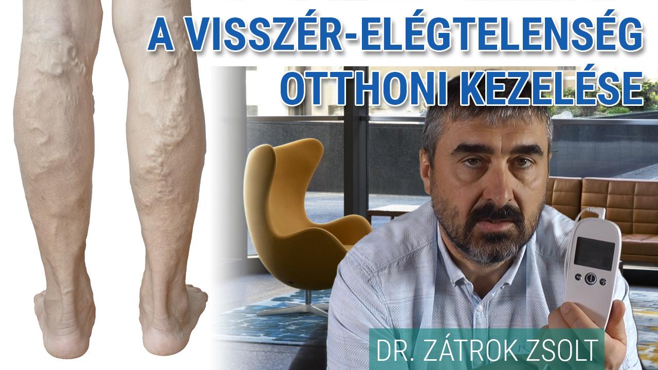 vizelet visszér kezelés)