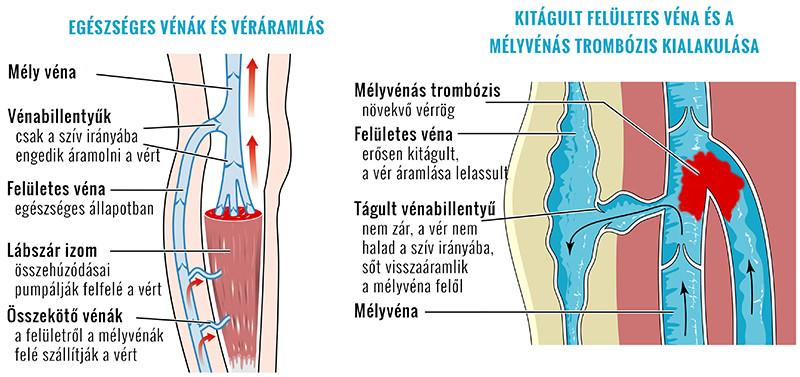az alsó végtagok varikózisának kezelése lézeres áron vénák helyreállítása visszér után