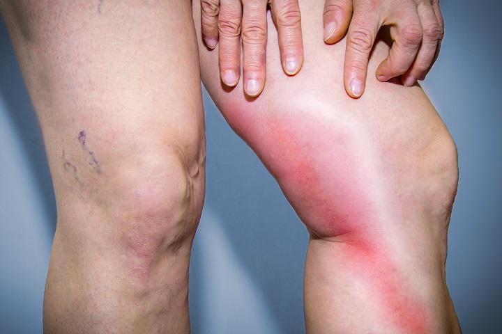 a lábakon lévő bőr visszérreped