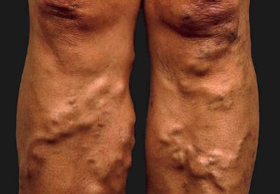 az alsó végtagok és a visszér tromboflebitise