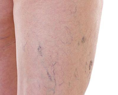 kapillárisok és visszér visszér a lábon veszélyes