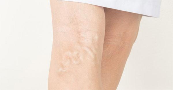 Visszér gyulladás – Felületes visszér trombózis | Visszér