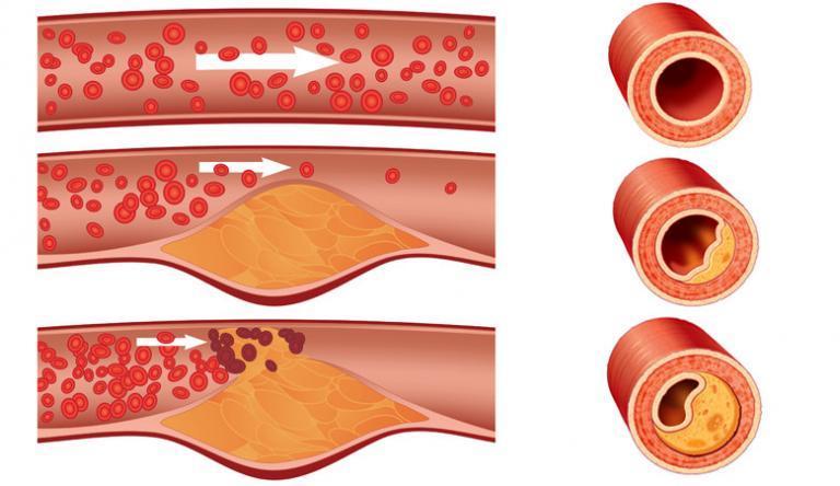 A leghatásosabb csecsemő antibiotikumok az anginára - Fájdalmas orr