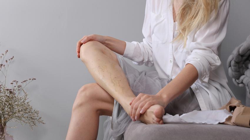 milyen harisnya kell a visszérhez a lábak és a karok viszketése visszeres