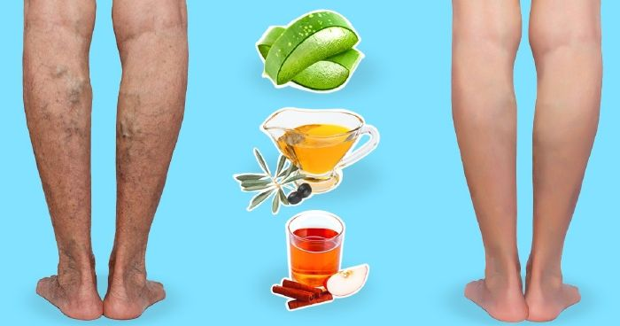 mi a visszér kezelése népi gyógymódokkal aloe juice visszér vélemények