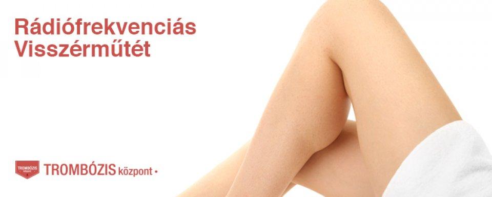 szeplők a lábakon visszérrel visszér kezelése vivasan