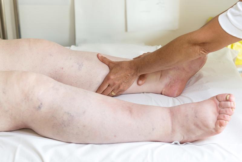 a visszér káros a lábon visszér a dst-nél