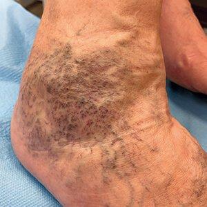 láb helyreállítása visszeres műtét után párna láb alatt visszér megvásárlásához