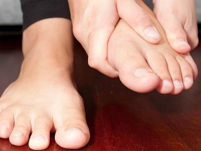távolítsa el a lábak varikózisát