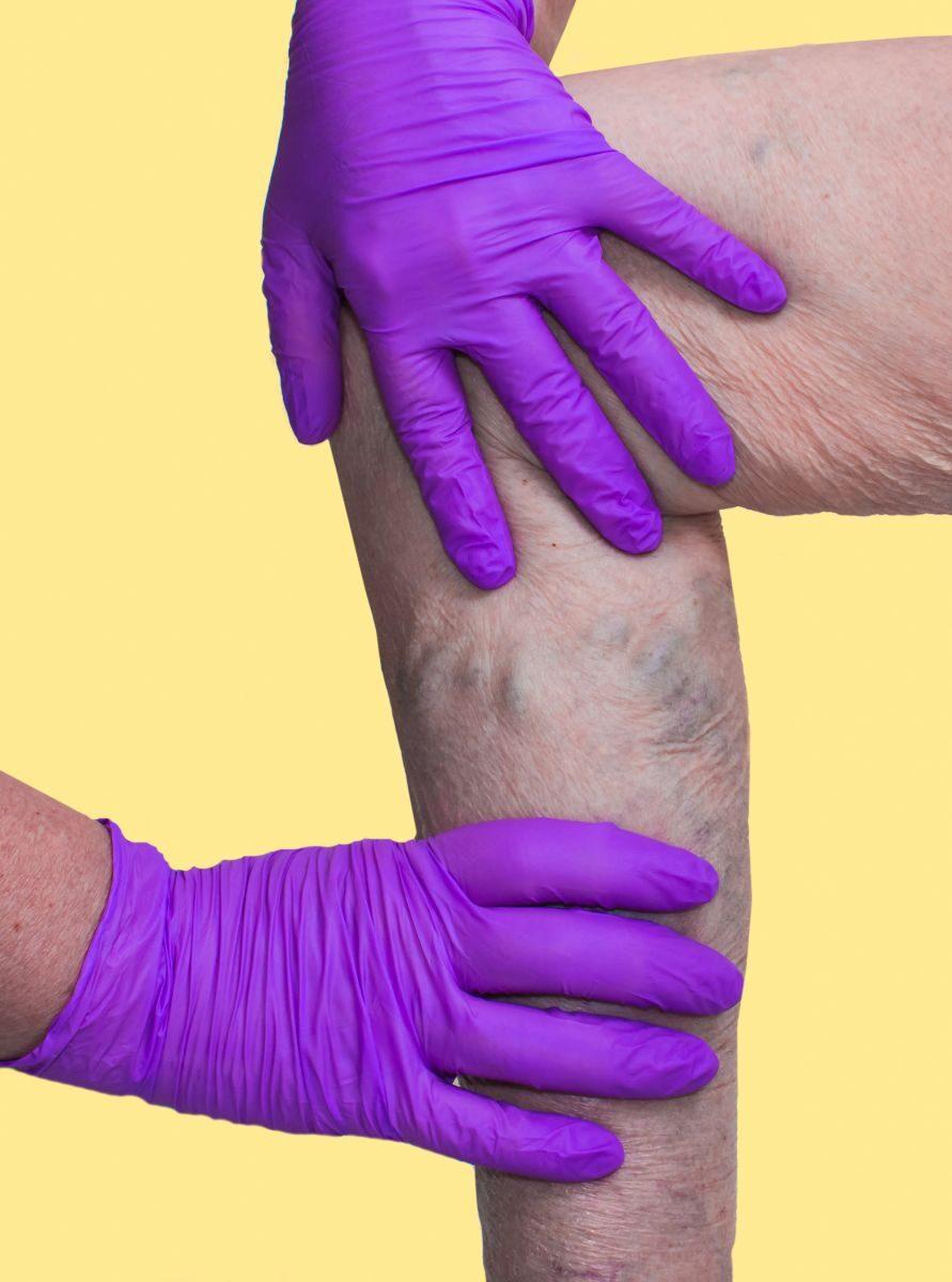 az alsó végtagok visszér diagnózisa hogyan törölje le lábát a visszérről ecettel