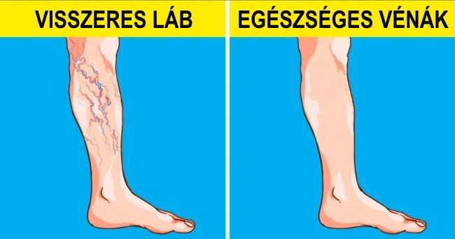 gyógynövények a visszeres lábak számára milyen fogamzásgátló tablettákat szedjen, ha visszér