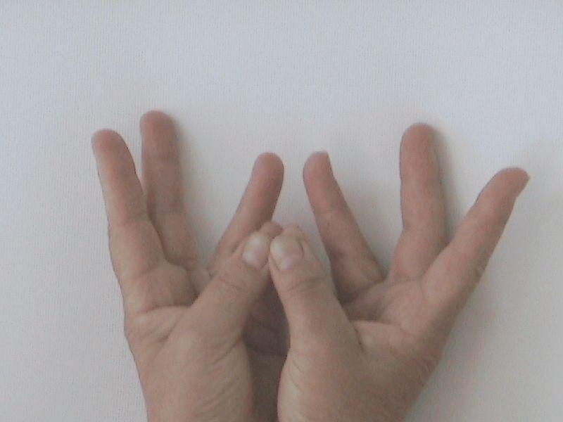 jóga kéz visszér