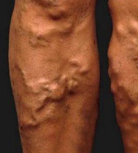kezdete visszér a lábakon kezelés