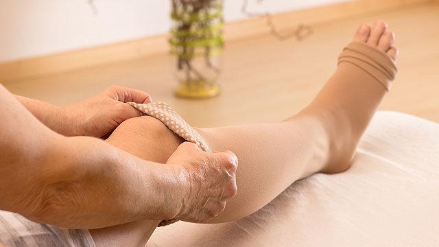 Visszeres láb kezése személyre szabott, komplex terápiával