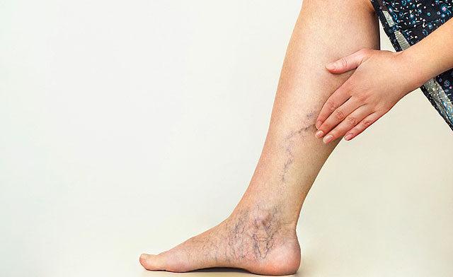 a lábakon lévő visszér kékessé válik