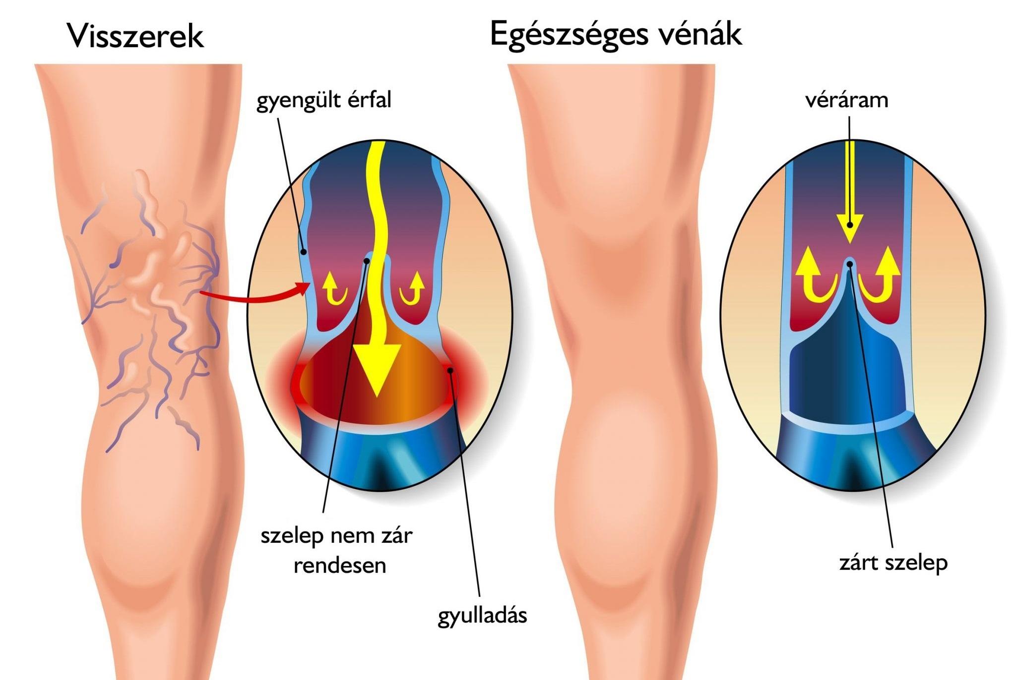 A varikózis következményei a férfiak lábán. Hogyan lehet megszabadulni a fájdalomtól?