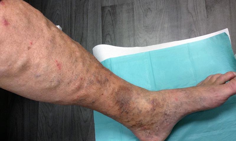 lila foltok a lábakon visszérrel