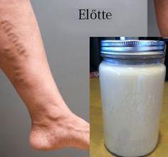 ha visszér a láb alatt phlebitis és visszér