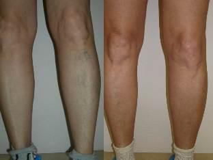ahol ellenőrizni kell a lábad visszeres állapotát