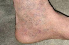 milyen lábkrém a visszér ellen amikor a lábad visszeres
