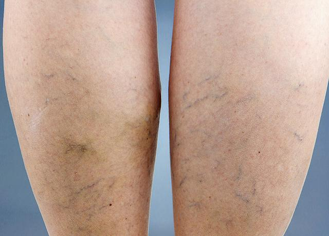 miért csökkenti a visszeres lábat
