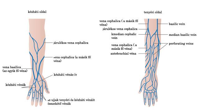 a lábakon lévő visszerek kezelése hidrogén-peroxiddal