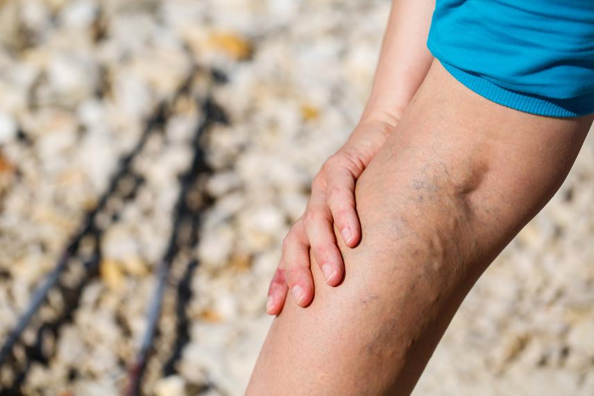 mit kell enni visszérrel a lábakon