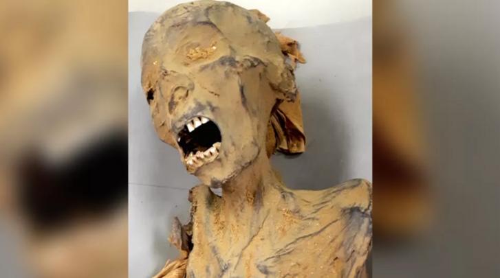 múmia visszér vélemények visszérből alkalmazással