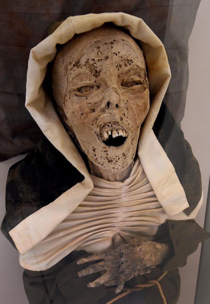múmia visszér vélemények osztályok a visszér súlyával