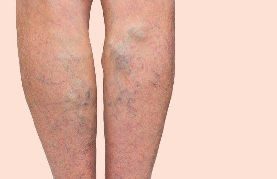 csavarja a lábát visszérrel gyógyítható-e a retikuláris visszér