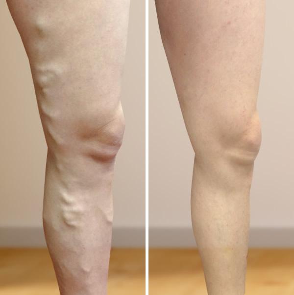 műtét után láb visszér
