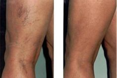 kenőcsök visszerek a lábakon kezelés