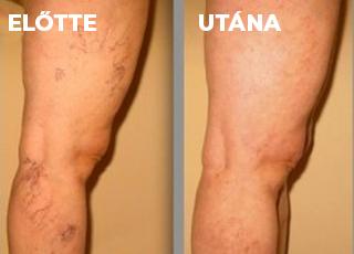 népi gyógymód a lábakon lévő visszerek kezelésére tinktúra burgonyacsírákon a visszér ellen