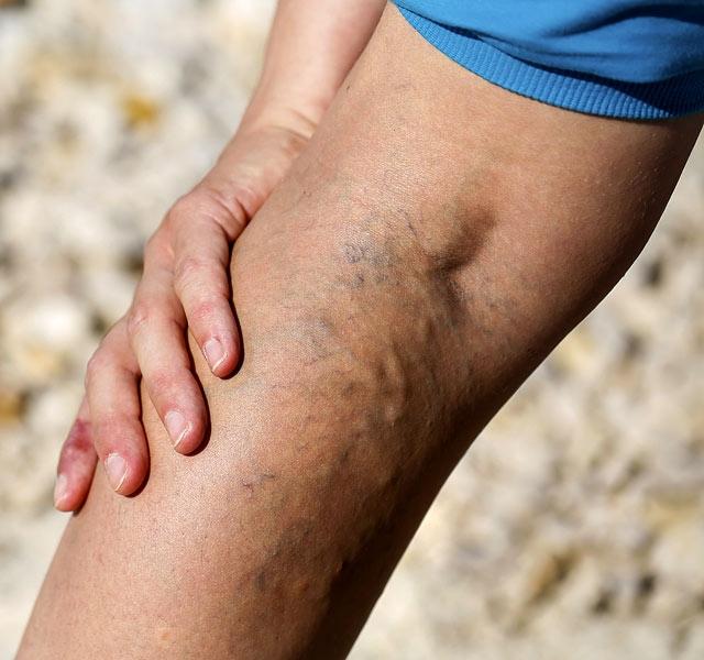 retikuláris visszér lézeres kezelés az egyik láb fájdalma visszeres