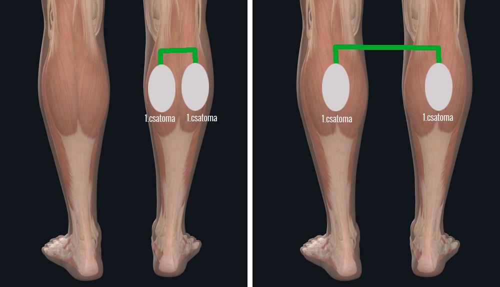 darsonvalization visszér visszérgyakorlat a lábak számára
