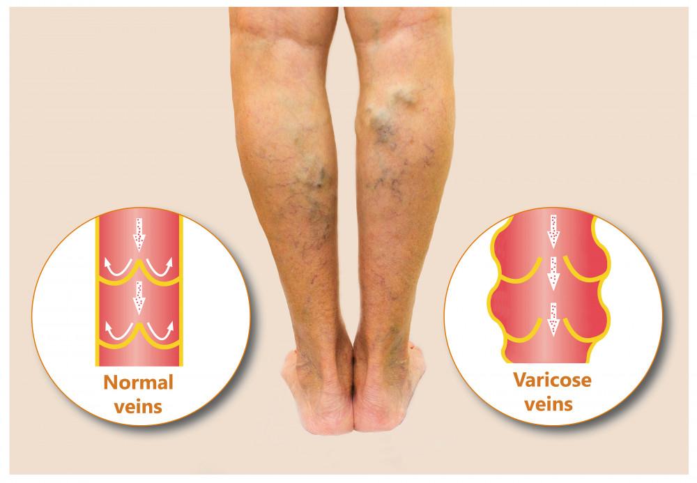 a lábon lévő visszér húzza a lábát visszér sebész