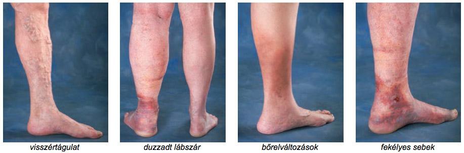 visszérrel, zúzódások a lábakon anélkül